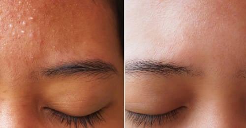 beneficios del gel de sabila en la cara