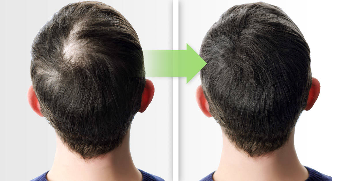 Masaje capilar para relajarte y estimular el crecimiento del cabello