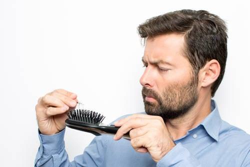 hombre caída del cabello