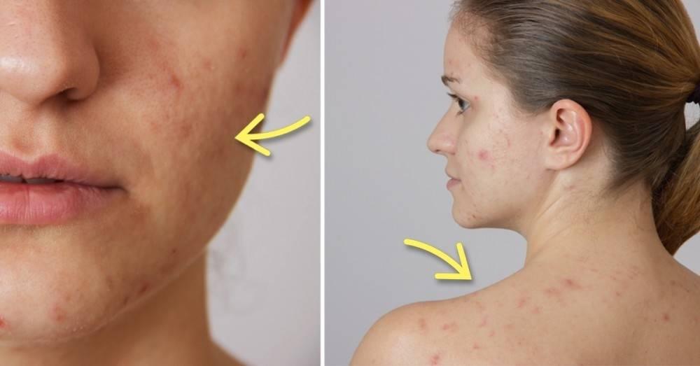 10 cosas comunes que están arruinando tu piel sin que lo sepas