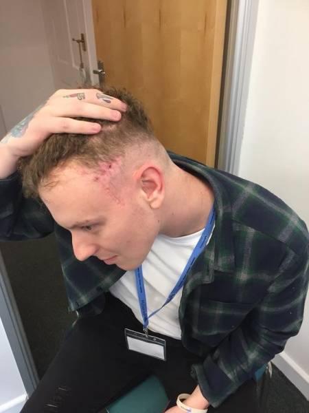 Su nuevo peluquero arruinó su corte de pelo, pero el accidente le salvó la vida
