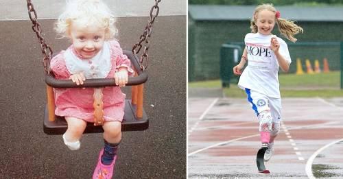 Esta niña perdió su pierna pero eso no le impidió cumplir su sueño