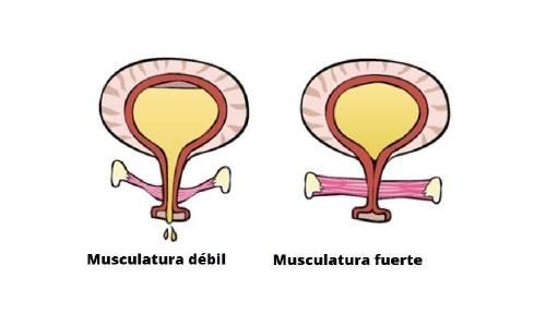 Soluciones naturales para la incontinencia urinaria
