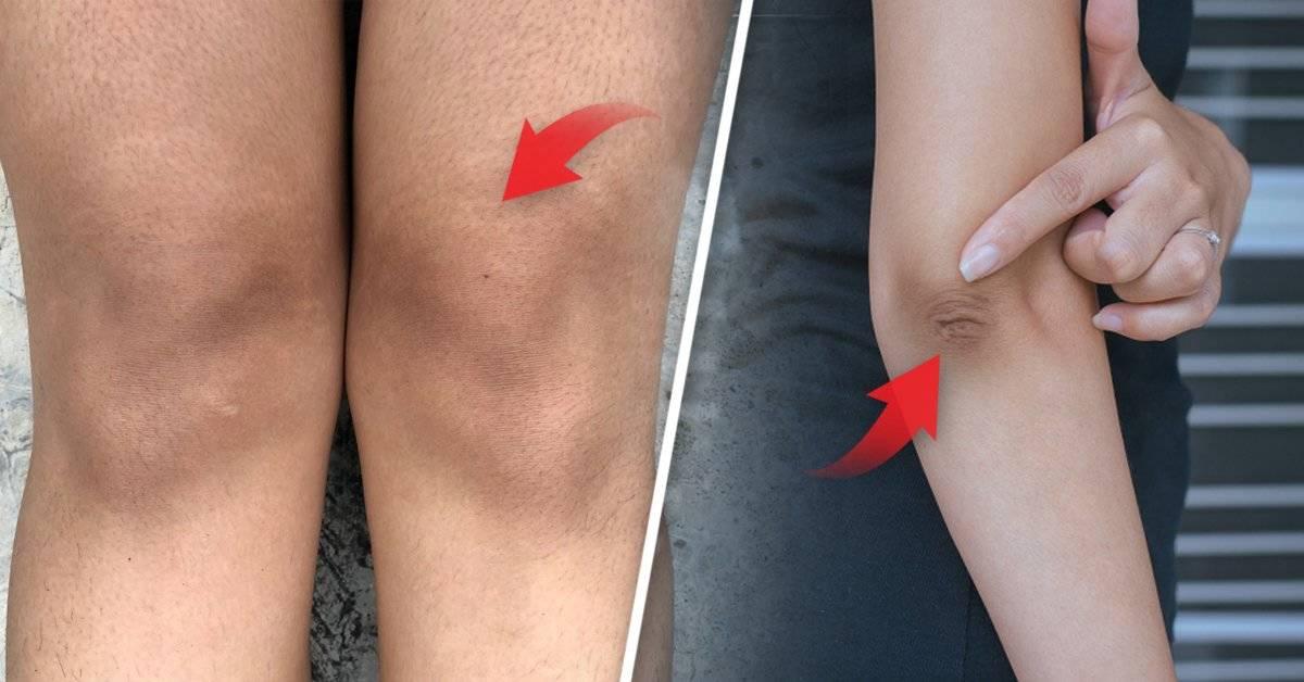 Cómo blanquear la piel de las rodillas y los codos