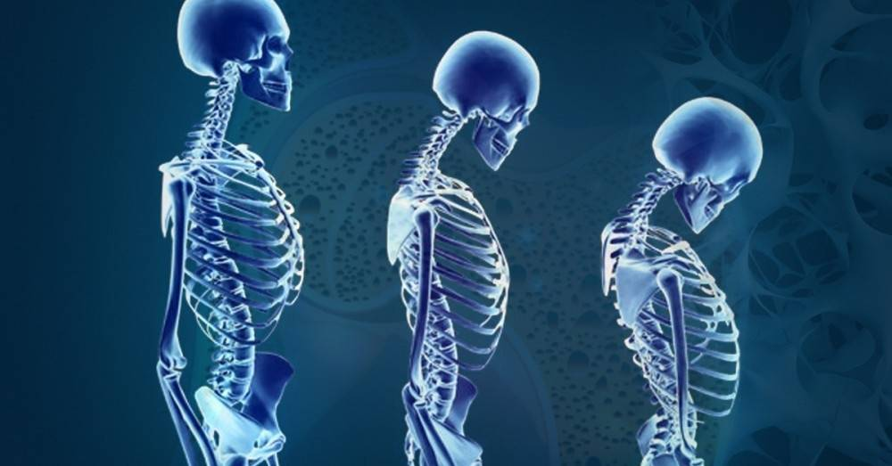 7 indicadores de osteoporosis que no debes ignorar