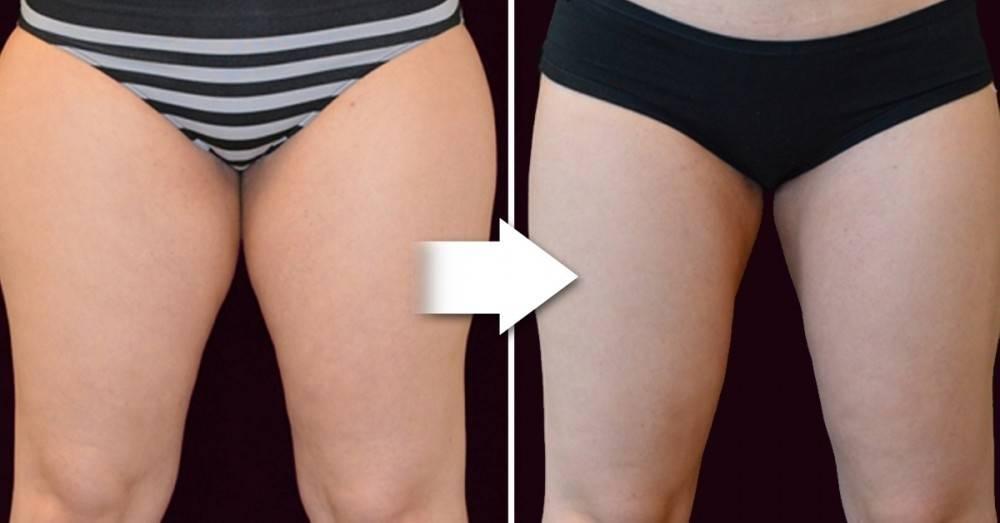 Cómo fortalecer los aductores para eliminar la grasa entrepiernas