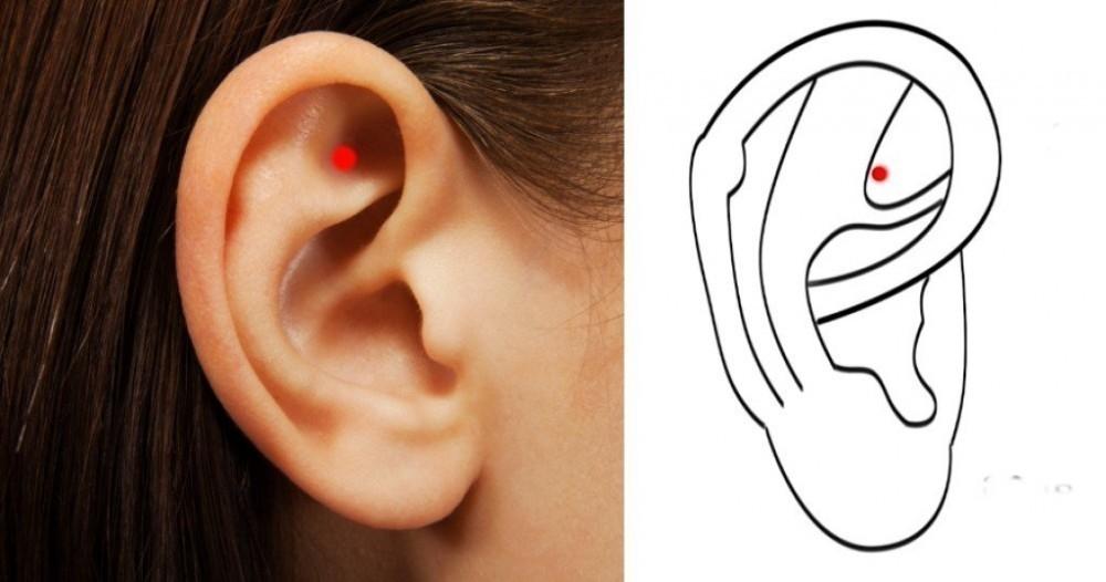 acupuntura semillas oreja para adelgazar