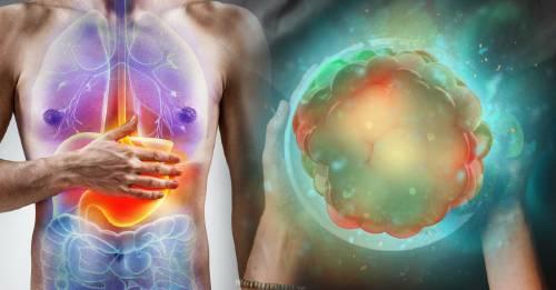 ¿Estás alimentando a tu cuerpo o al cáncer?