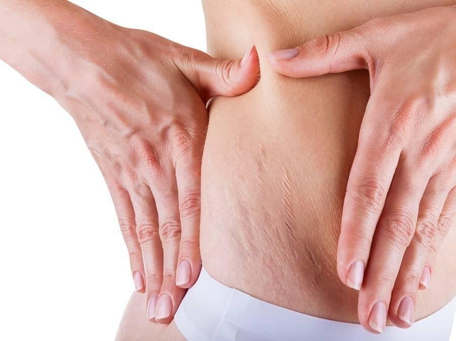 2 tratamientos para eliminar las estrías de forma natural
