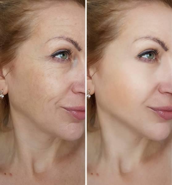Elimina las arrugas del rostro con este utensilio que tienes en casa
