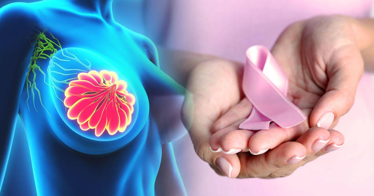 7 creencias comunes sobre el cáncer de mama que es necesario aclarar