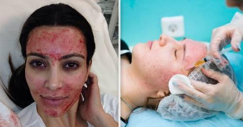 Una mujer se contagió VIH por imitar el tratamiento facial de Kim Kardashian
