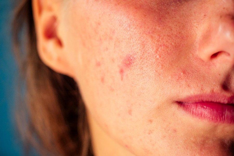acné problemas piel