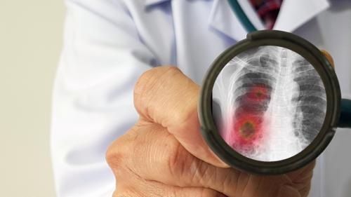¿Por qué el sistema inmunitario de las mujeres las defiende mejor de la COVID-19?