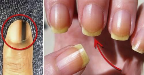 5 señales en las uñas de que algo no está bien con tu cuerpo
