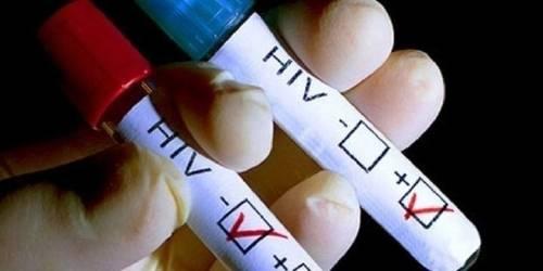 El virus del VIH fue eliminado por completo de la sangre de un paciente britá..