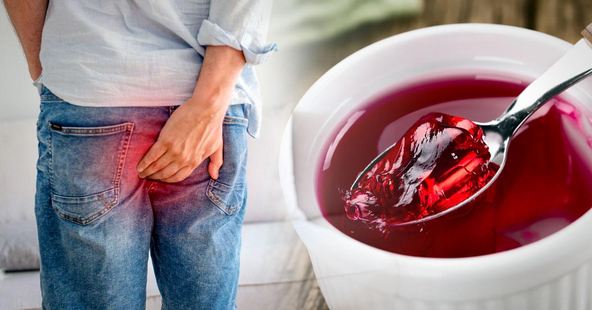 comidas sanas para evitar hemorroides
