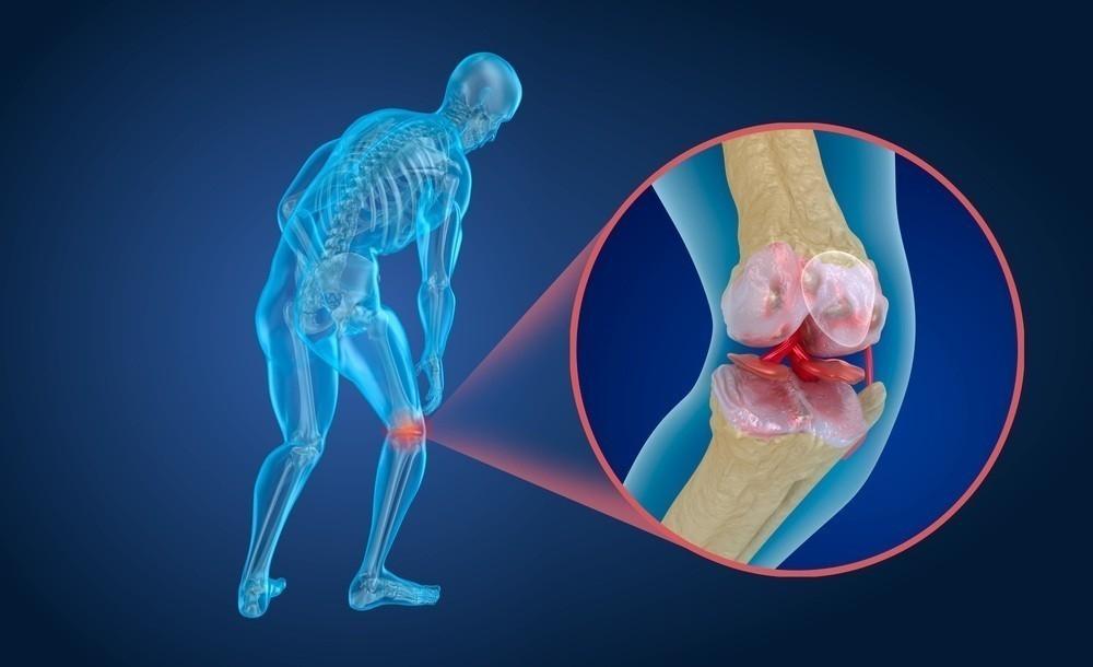 Remedio casero para regenerar los cartílagos de cadera y rodillas
