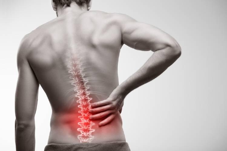 Cómo prevenir las hernias de disco