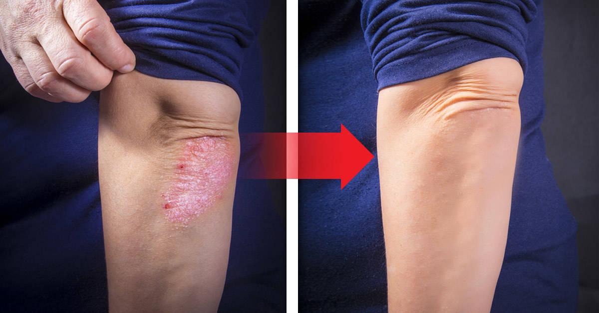5 remedios naturales para tratar la piel paspada
