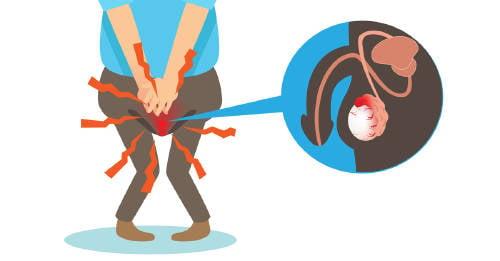 próstata com problemas