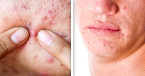 4 razones por las que puedes tener acné de adulto