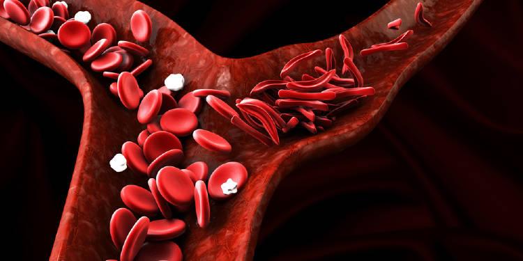 anemia sangre