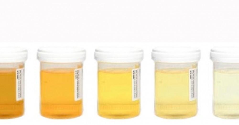 orina amarilla en el embarazo