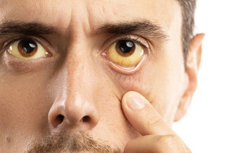 Ojos amarillos: problemas de salud