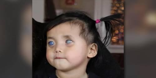 """Esta niña de ojos plateados fue abandonada """"por bruja"""" pero ahora su vida es .."""