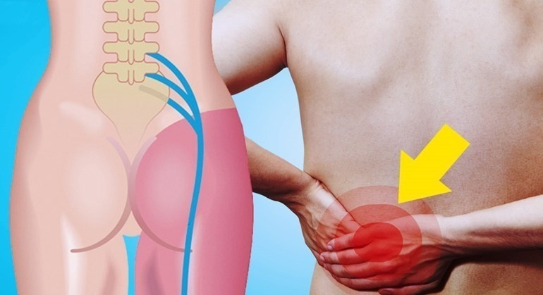 10 Maneras De Eliminar El Dolor De Espalda Cadera Y Nervio Ciático Bioguia