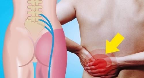 10 maneras de eliminar el dolor de espalda, cadera y nervio ciático