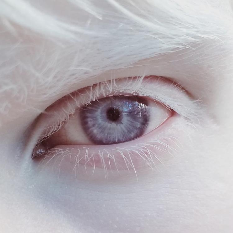 ¿Qué es el albinismo? Causas en en personas y animales