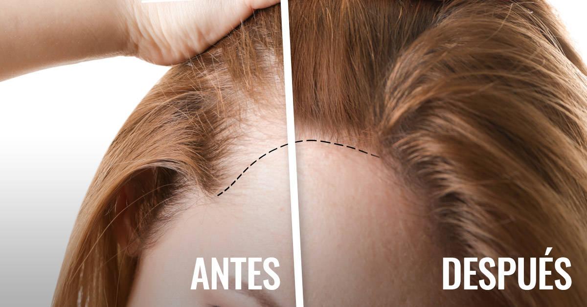 Solo necesitas estos dos ingredientes para que tu cabello crezca como loco