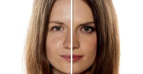 Esto es lo que debes saber si tienes la piel grasosa