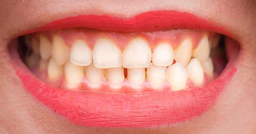 mujer mostrando sus dientes blancos