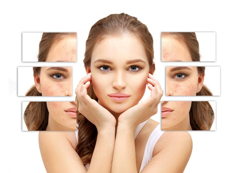 remedio natural para quitar manchas en la cara por acne