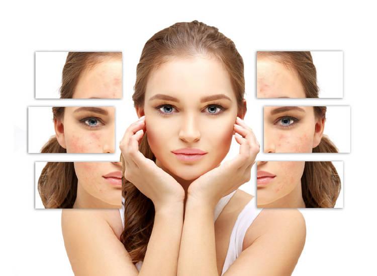 ¿Cómo quitar granos de la cara sin dejar marca?