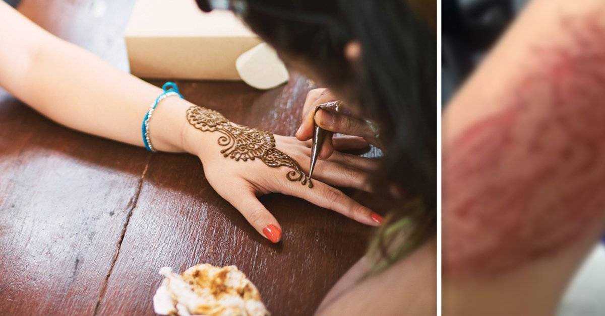 Un tatuaje de henna la dejó cicatrizada para siempre