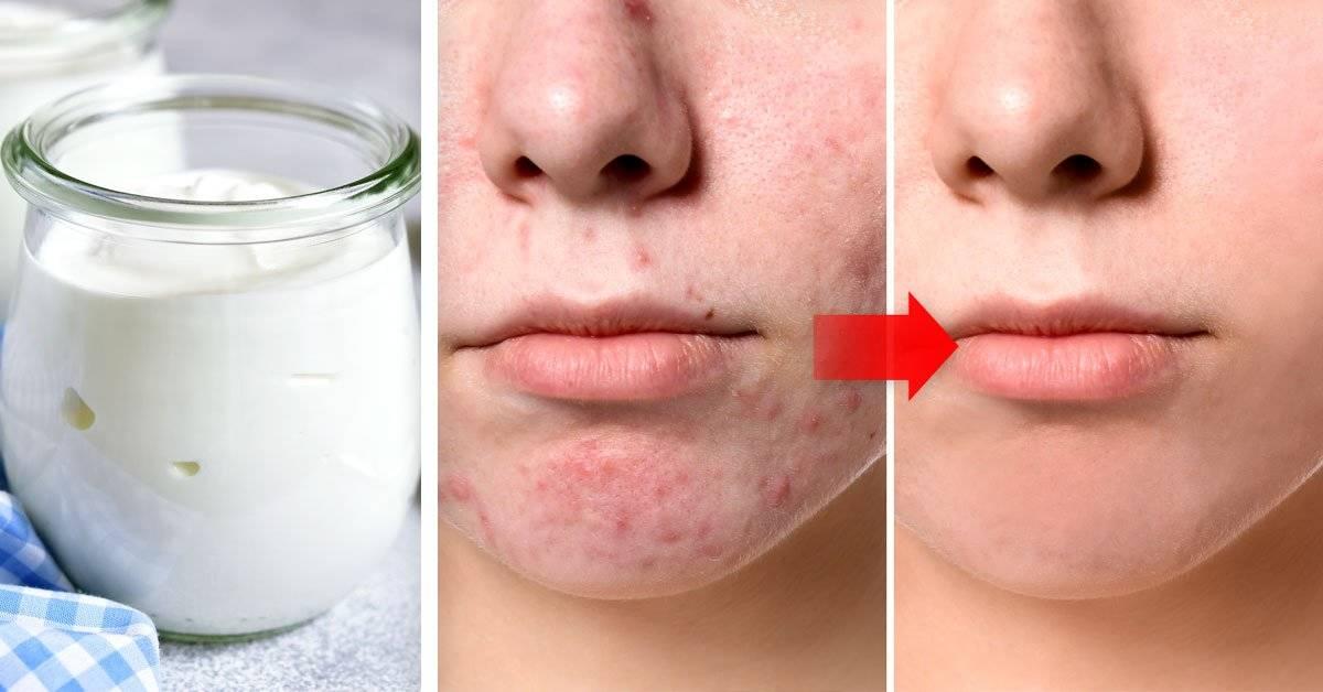 No te imaginas todos los tratamientos de belleza que puedes hacer con este ingrediente
