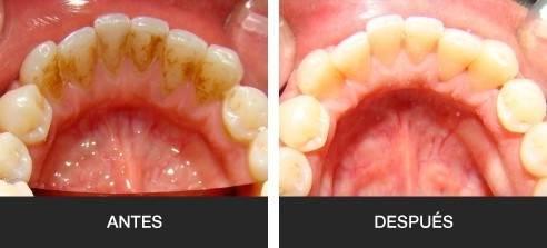 Sigue estos pasos y elimina el sarro de tus dientes de la noche a la mañana