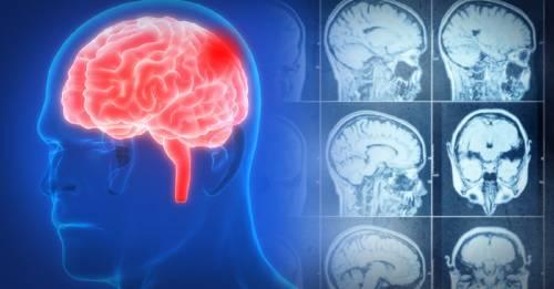 7 cosas cotidianas que puedes hacer para reducir el riesgo de un derrame cerebral
