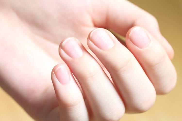 Por qué salen líneas en las uñas y cómo eliminarlas naturalmente
