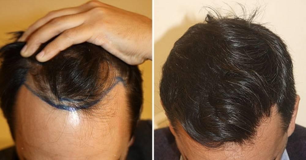 Posturas de yoga para combatir  la caída del cabello