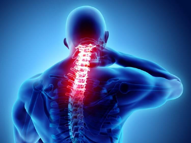 Vértebras de una persona con dolor cervical