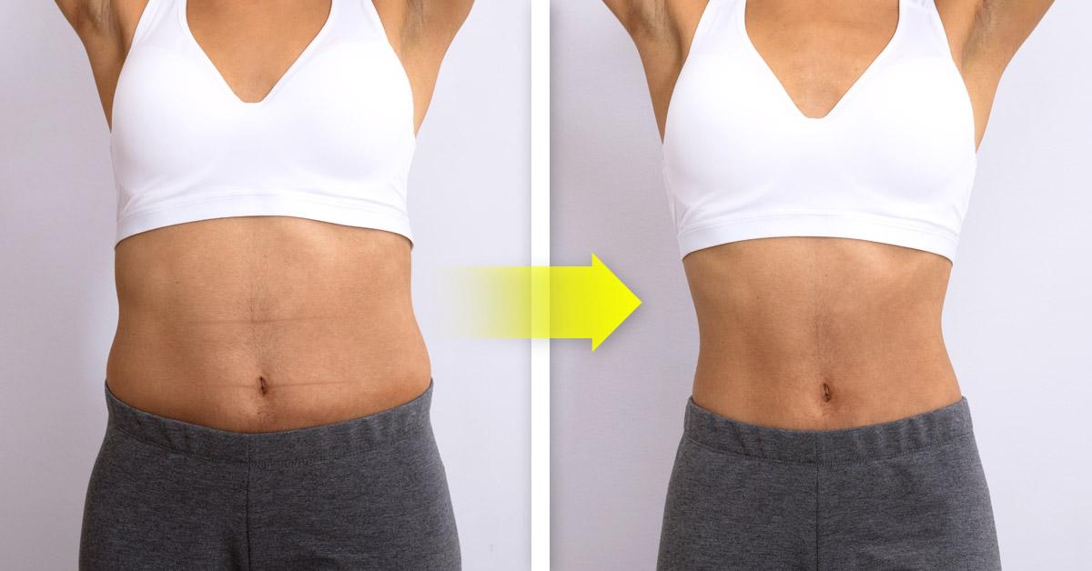 Que comer para bajar de peso sin pasar hambre en el embarazo