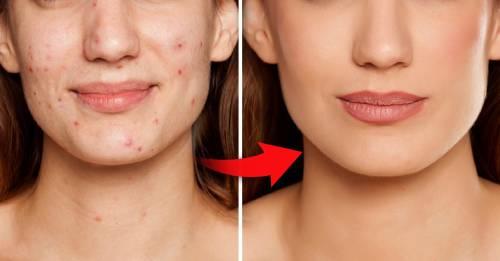 Para evitar el acné, estos 3 pasos no pueden faltar en tu rutina diaria