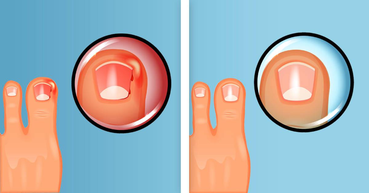 Por qué se encarnan tus uñas y qué puedes hacer para prevenirlo