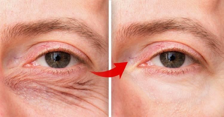 Solución rápida y efectiva para los párpados caídos y arrugas alrededor de los ojos