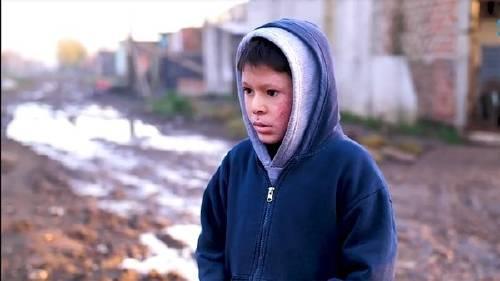 La historia del niño con piel de cristal que tiene conmovido a todo un país